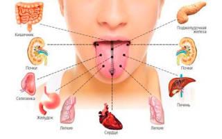 Желтый язык при заболевании поджелудочной железы